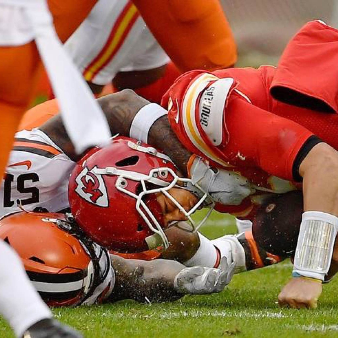 """Mahomes Injury Looking An Episode of """"House"""""""